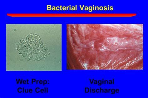 Vaginal wet mount wikipedia jpg 1080x720